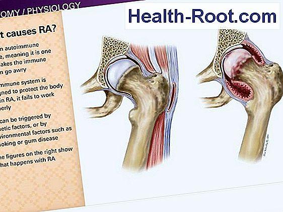 rheumatoid arthritis bokaízület