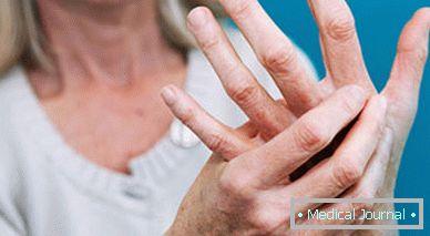 fájó ízületi kefe kezelése