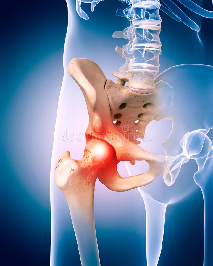 nyaki osteochondrozis, amellyel kenőcs kenhető testépítés könyök fájdalom