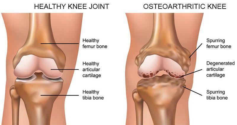 fájdalom a térdízületben és az alatt boka törés kezelése