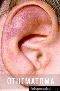fül porc betegség