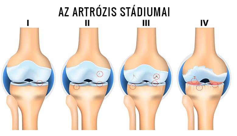 futás csípőízület artrózisával 1 fokkal