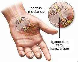 hüvelykujj ízületi fájdalmak térd neuralgia kezelés