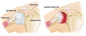 kezeljük a vállízület fájdalmát gyulladáscsökkentő gyógyszer izületi gyulladásra