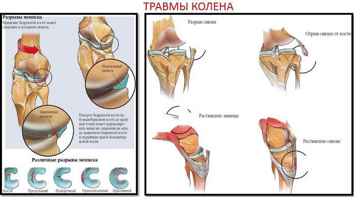 csípőbetegség coxarthrosis kezelése