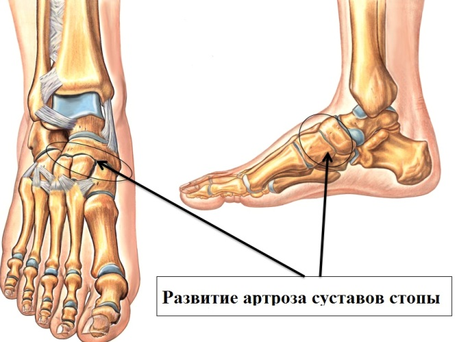 A láb ízületek duzzanata - okok és hatékony kezelés - Melanóma