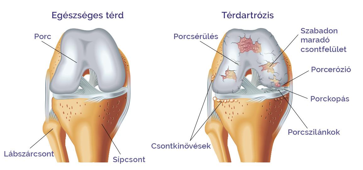 térd artrózisos kezelése