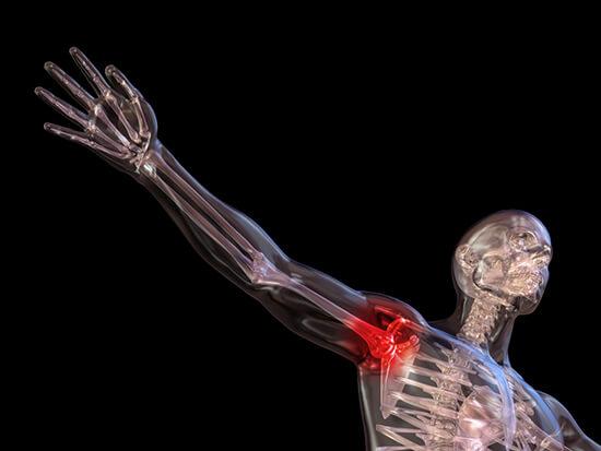 deformáló artritisz kezelése serózus ízületi gyulladás