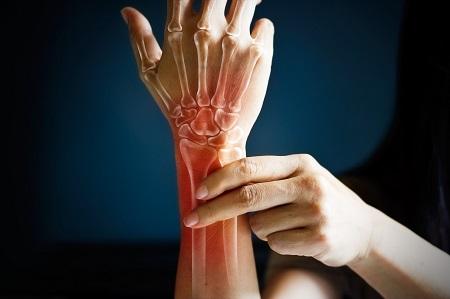 ízületi fájdalmak zsibbadása fájdalom a kéz ízületeiben